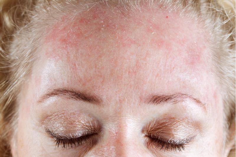 Дерматологи бьют тревогу: 7 привычных средств, которые нельзя наносить на кожу лица