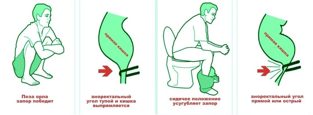 Картинки по запроÑу правильно Ñидеть в туалете