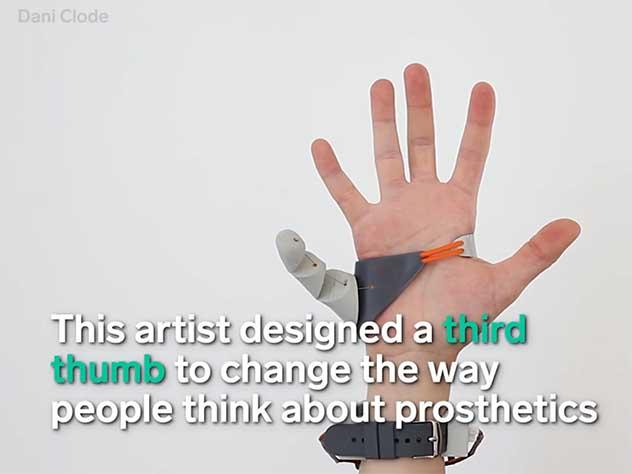 Британская изобретательница разработала протез для шестого пальца