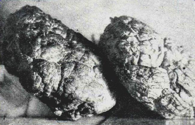 Окаменевший мозг в Одинцово - неразгаданная тайна 20 века
