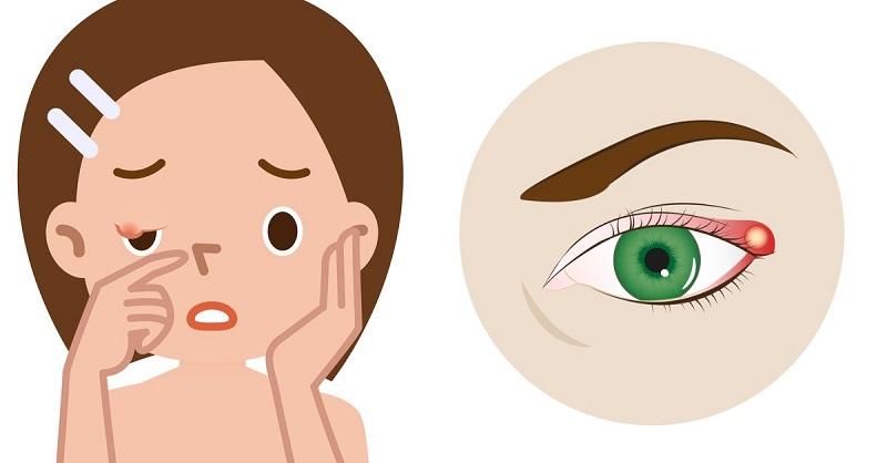 как вылечить ячмень на глазу за 1 день