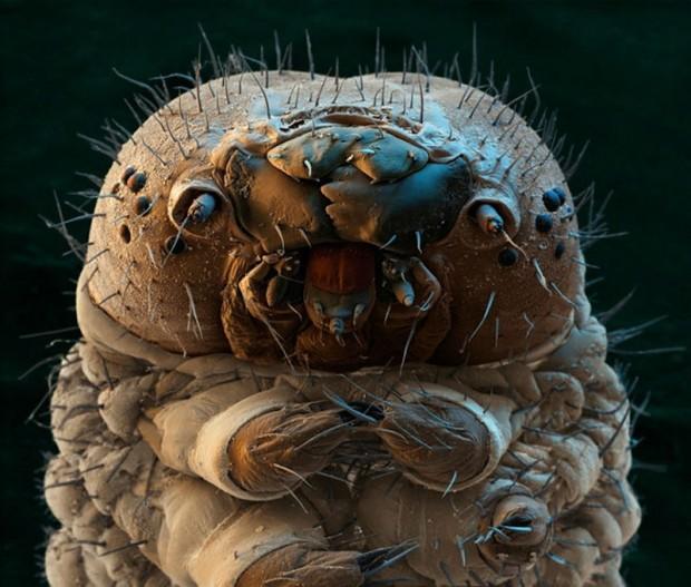 фото микробов под ногтями
