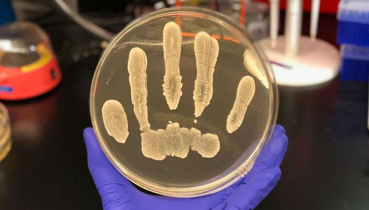 Защиту от рака обнаружили на коже человека
