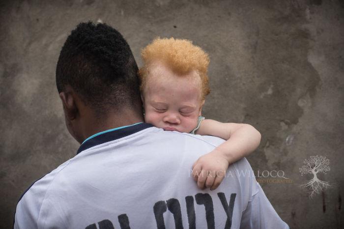 Младенец-альбинос мирно уснул на руках у отца.