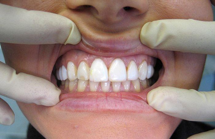 10 Разожмите ему зубы люди, первая помощь, познавательно