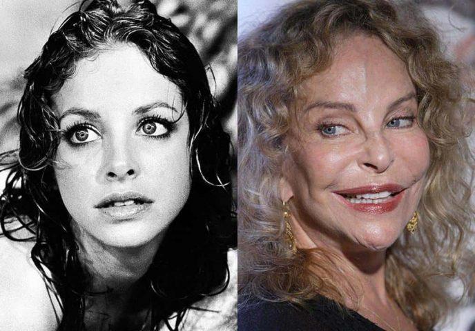6 бывших знаменитостей, которые переборщили в погоне за красотой заморские звезды
