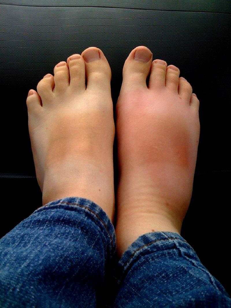 что делать при отеках ног