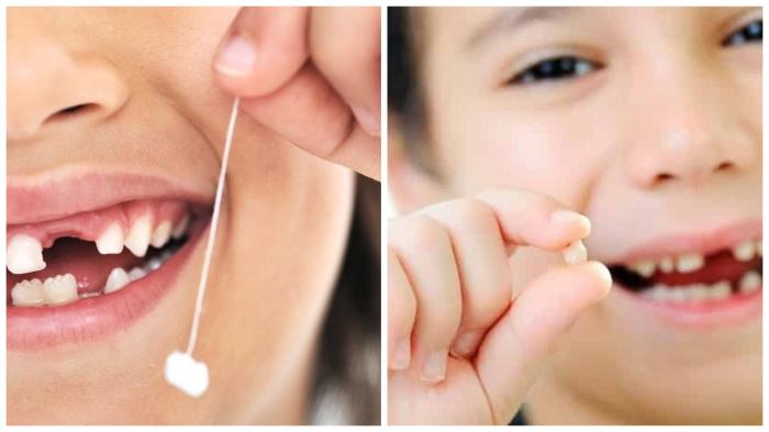 Молочные зубы могут вырасти дважды.