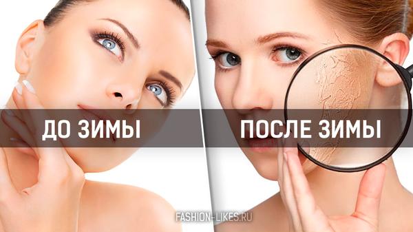 Из зимы в лето: 6 советов, как восстановить кожу лица после холодов