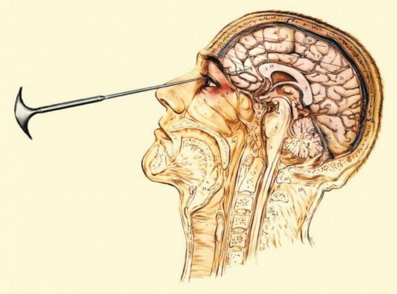 Лоботомия — 10 фактов о пугающей операции здоровье,история,медицина,мозг
