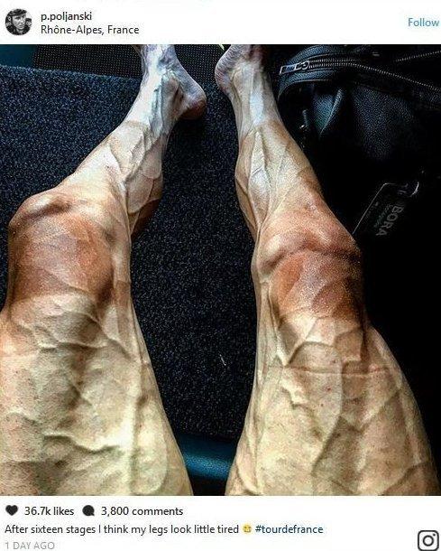 2. Ноги велогонщиков после соревнований выглядят примерно так балерина, бодибилдер, велосипедист, жутко, интересно, спорт, спортивные травмы, спортсмены