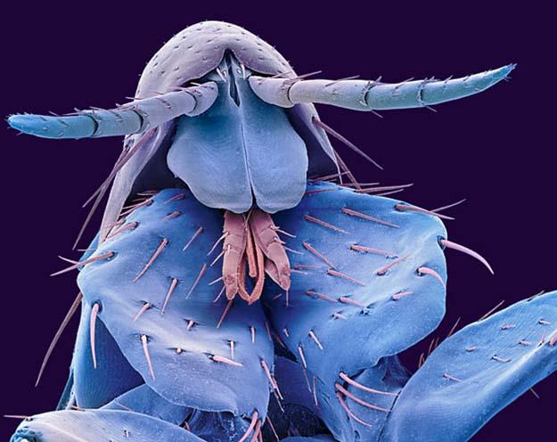 The head of a human flea