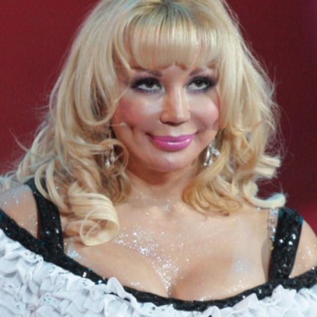 Маша Распутина полностью перекроила лицо, отрезав нос, щеки и увеличив губы до невероятных размеров