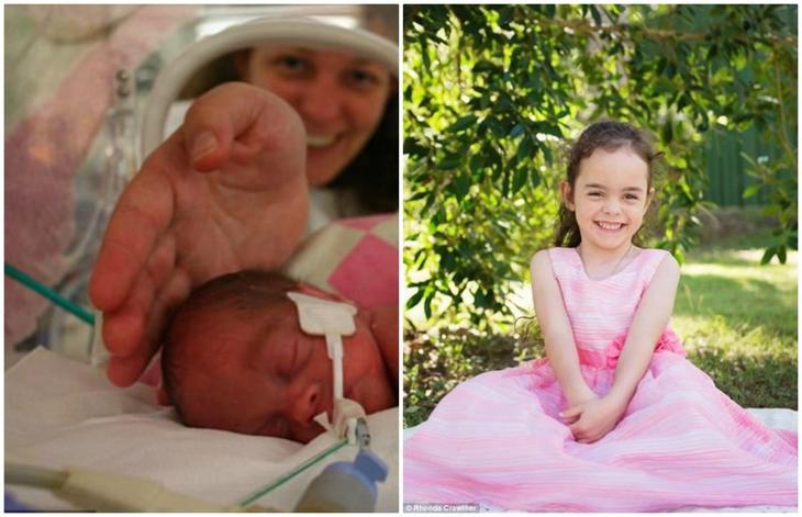 Недоношенная девочка весом 669 грамм при рождении уже 10 лет радуется жизни!