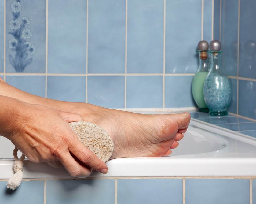 Как убрать мозоли, вылечить трещинки и неприятный запах ног