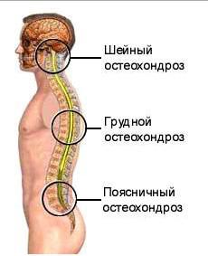 Методы лечения остеохондроза народными средствами, проверенные веками