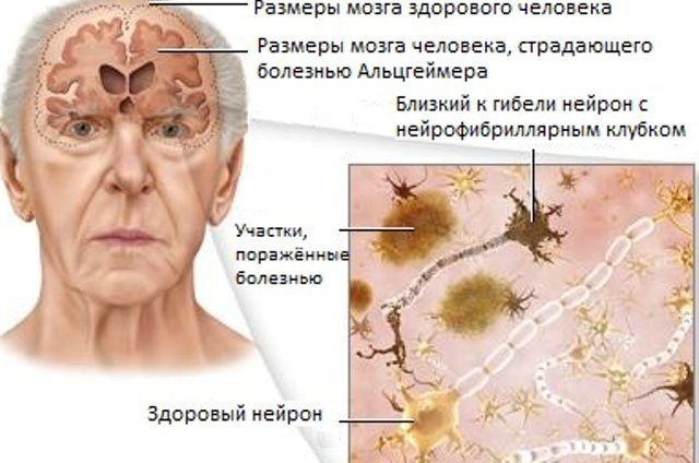 Как уберечься от болезни Альцгеймера