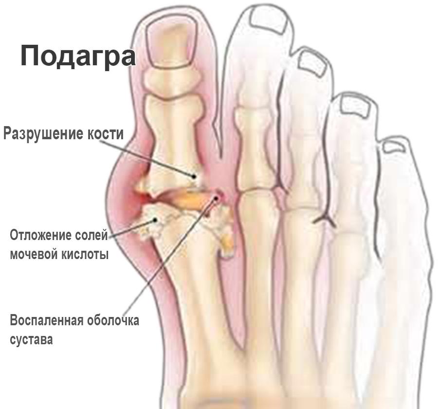 Почему болят суставы и от чего там появляюся наросты клиника разболтанного сустава