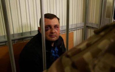 СБУ задержала и «в рамках закона» сломала челюсть бывшему депутату Верховной Рады
