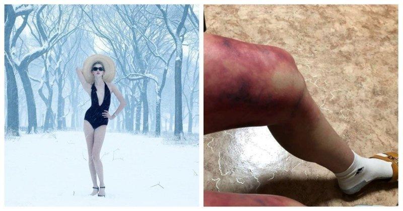 Студентка из Астаны вышла на улицу в -35 и обморозила ноги