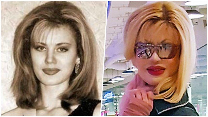 Как сложилась судьба королевы красоты, которую облили кислотой 20 лет назад
