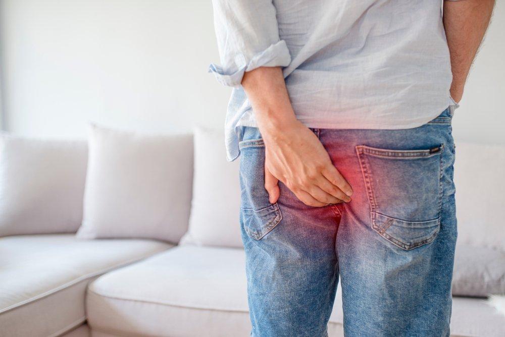 Геморрой: Ñимптомы у мужчин и женщин