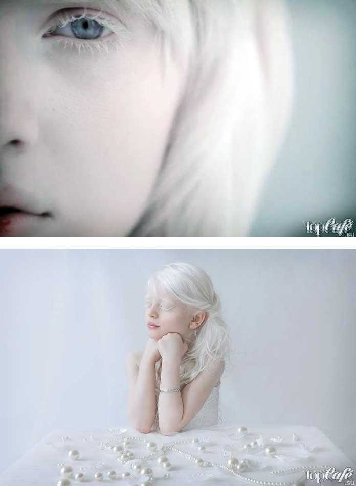 как видят люди альбиносы фото стерилизация