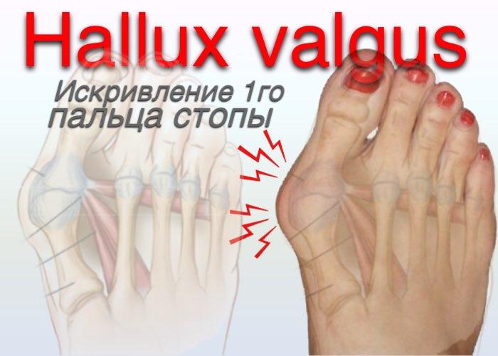 заболевания пальцев стоп