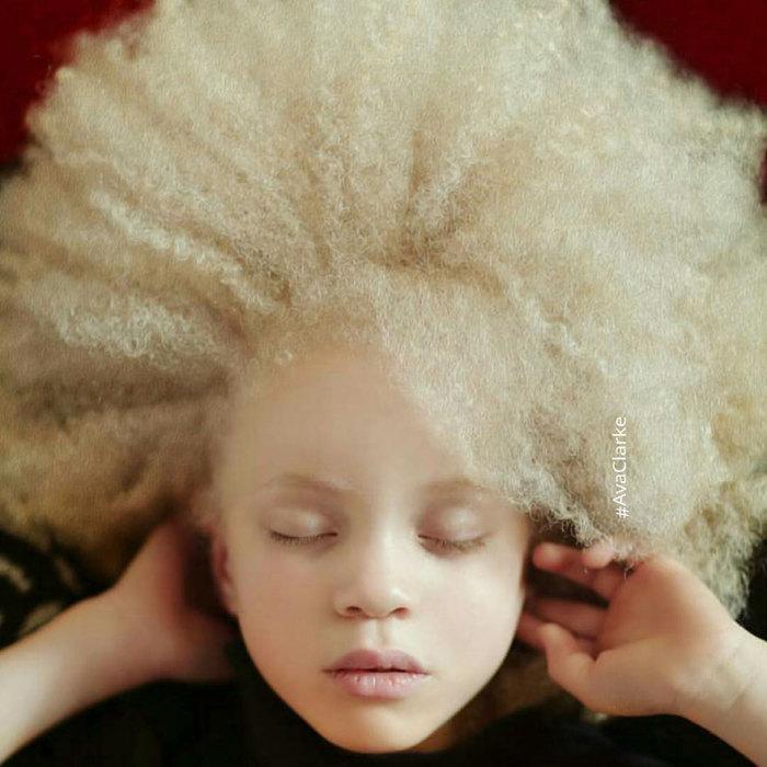 Девочка с розовыми губами, молочной кожей и волосами похожа на одуванчик.
