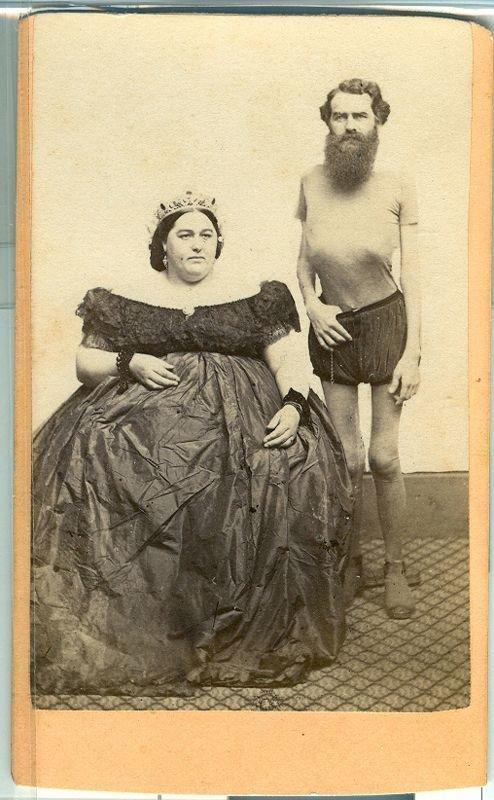 Я не такой толстый исторические снимки, странности, страшно, фото, цирк уродов