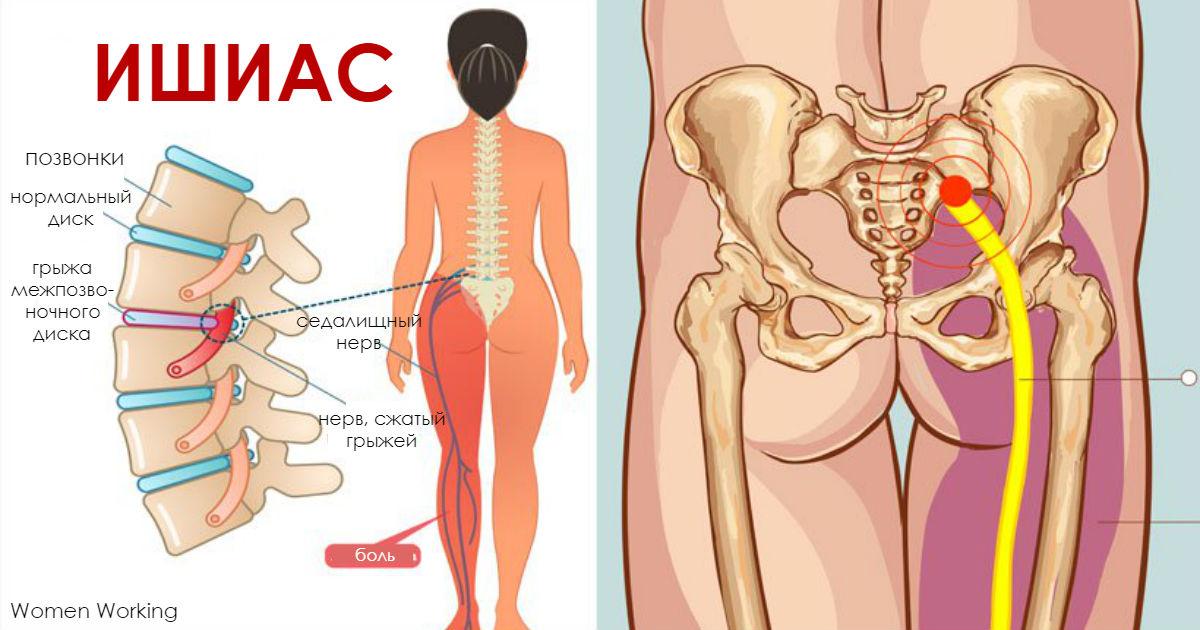 5 упражнений от боли в спине, которые осилит любая женщина