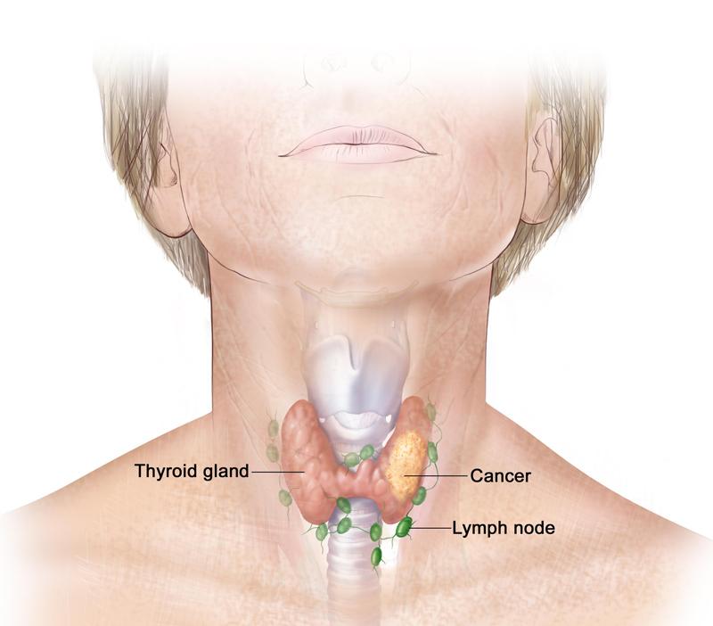 Щитовидная железа и гормоны: что необходимо знать всем