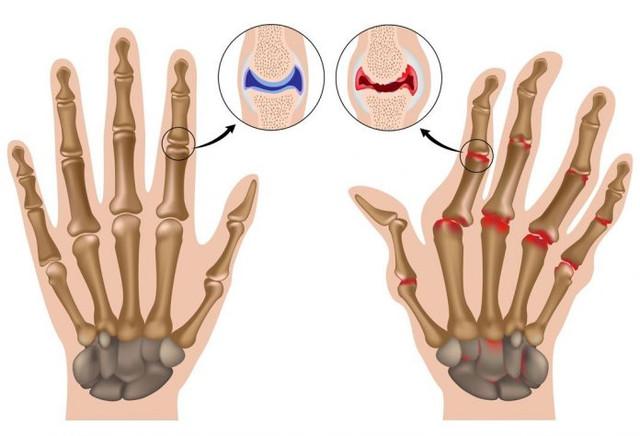 лечение, ревматоидный артрит
