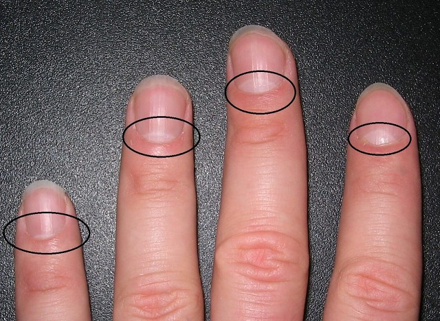 Картинки по запросу полумесяц на ногтях
