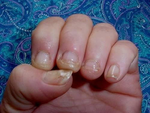 При наращивании ногтей может ли быть грибок
