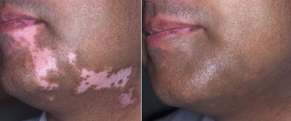 Витилиго до и после лечения