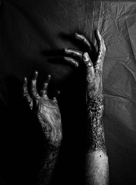 Темные тела: мрачные истории на лучших черно-белых снимках со всего мира