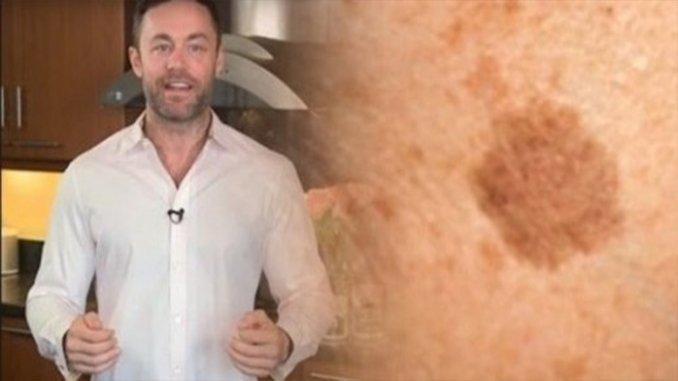 Известный дерматолог показал, как вывести пигментные пятна на коже