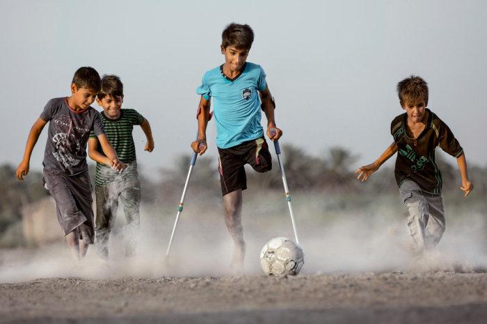 Мальчик потерявший ногу в результате теракта. Автор фотографии: Тайсир Махди.