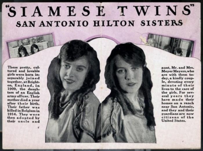 «Вместе до самой смерти». Cиамские близнецы Хилтон и их история