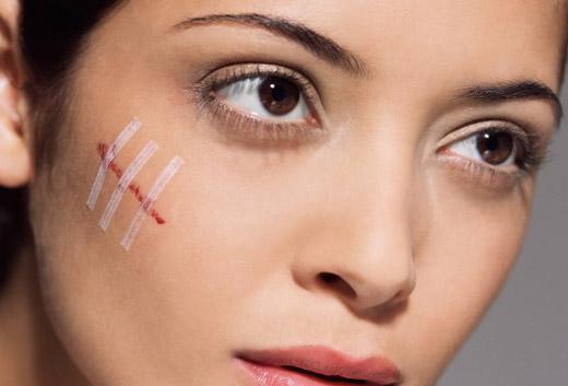 Лечение рубцов и шрамов народными средствами