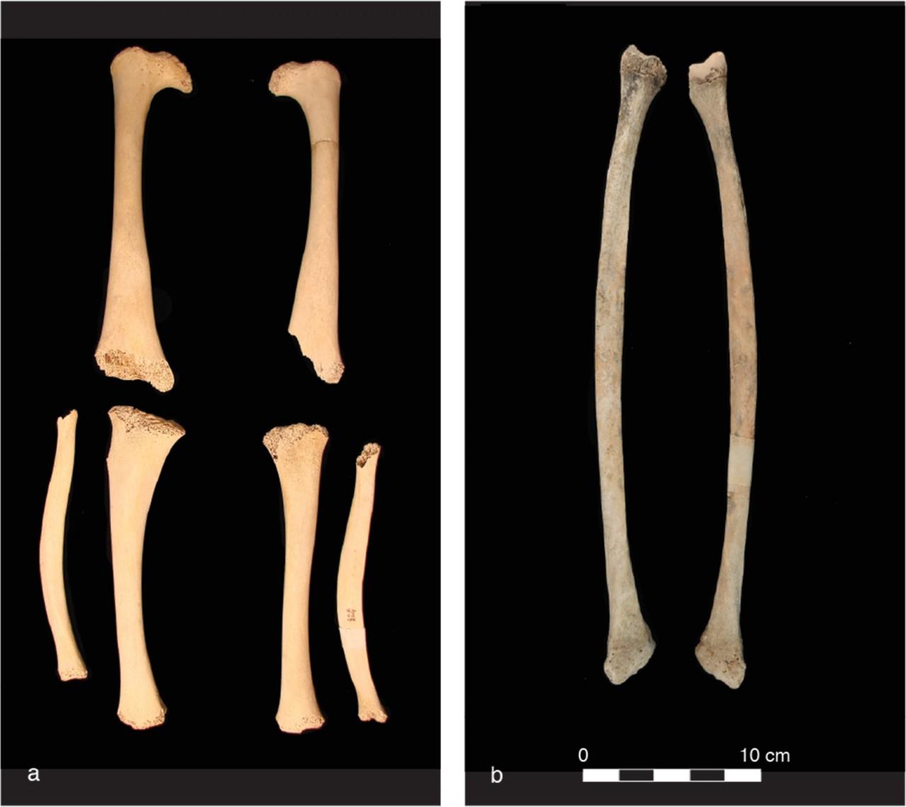 Рахит: страдали ещё в плейстоцене