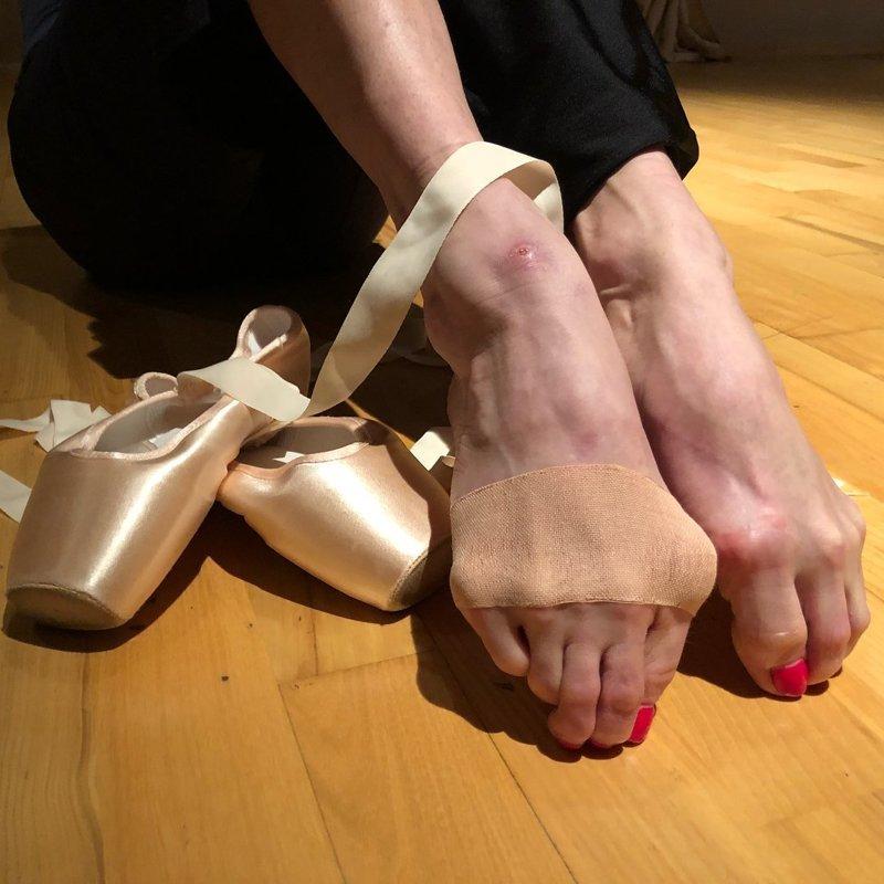 4. Через жуткую боль в стопах приходится проходить и балеринам балерина, бодибилдер, велосипедист, жутко, интересно, спорт, спортивные травмы, спортсмены