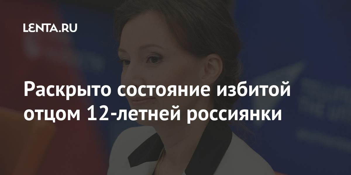 Раскрыто состояние избитой отцом 12-летней россиянки Россия