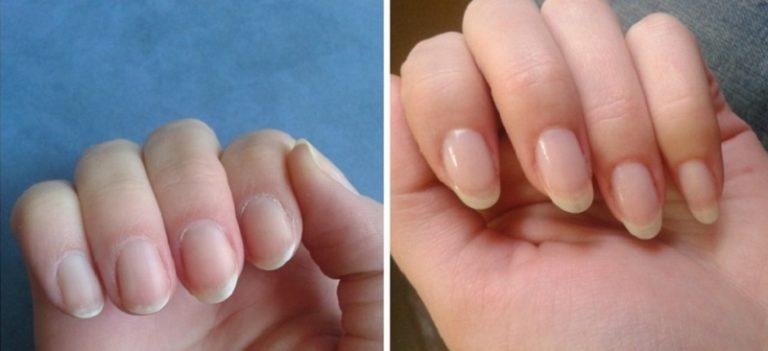 Хотите быстро отрастить ногти? Чтобы они никогда не ломались?