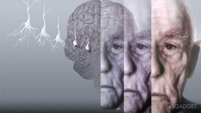 Россияне близки к излечению болезней Альцгеймера и Паркинсона
