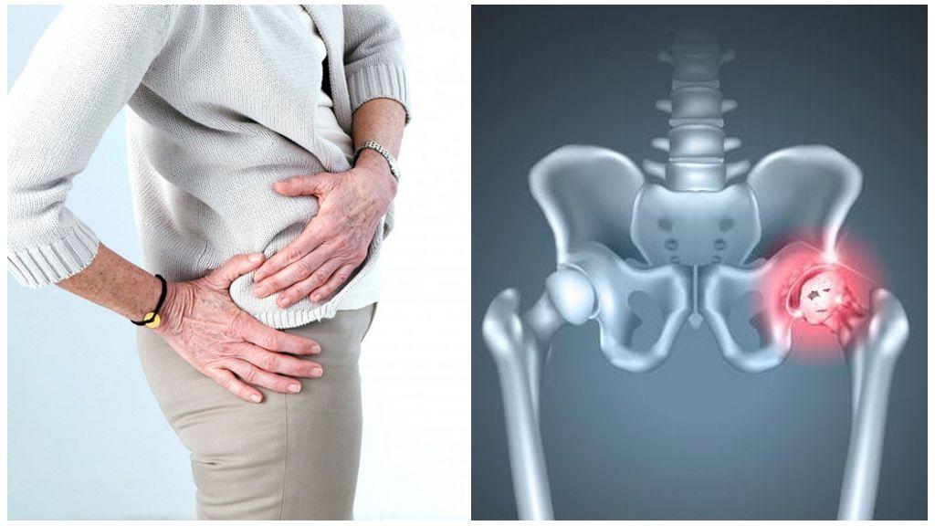 Чем грозят проблемы с тазобедренным суставом