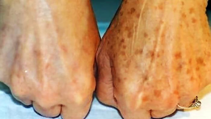 Невероятно простой способ убрать пигментные пятна на коже здоровье,кожа,красота,пигментные пятна