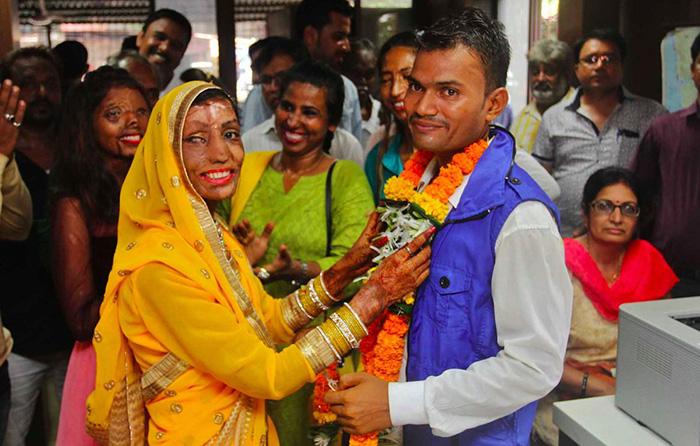 Рави женился на Лалите, несмотря на ее жуткие ожоги.