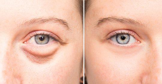 Средство от мешков под глазами: натуральный рецепт для освежения лица